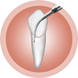 periodontikes-pathiseis